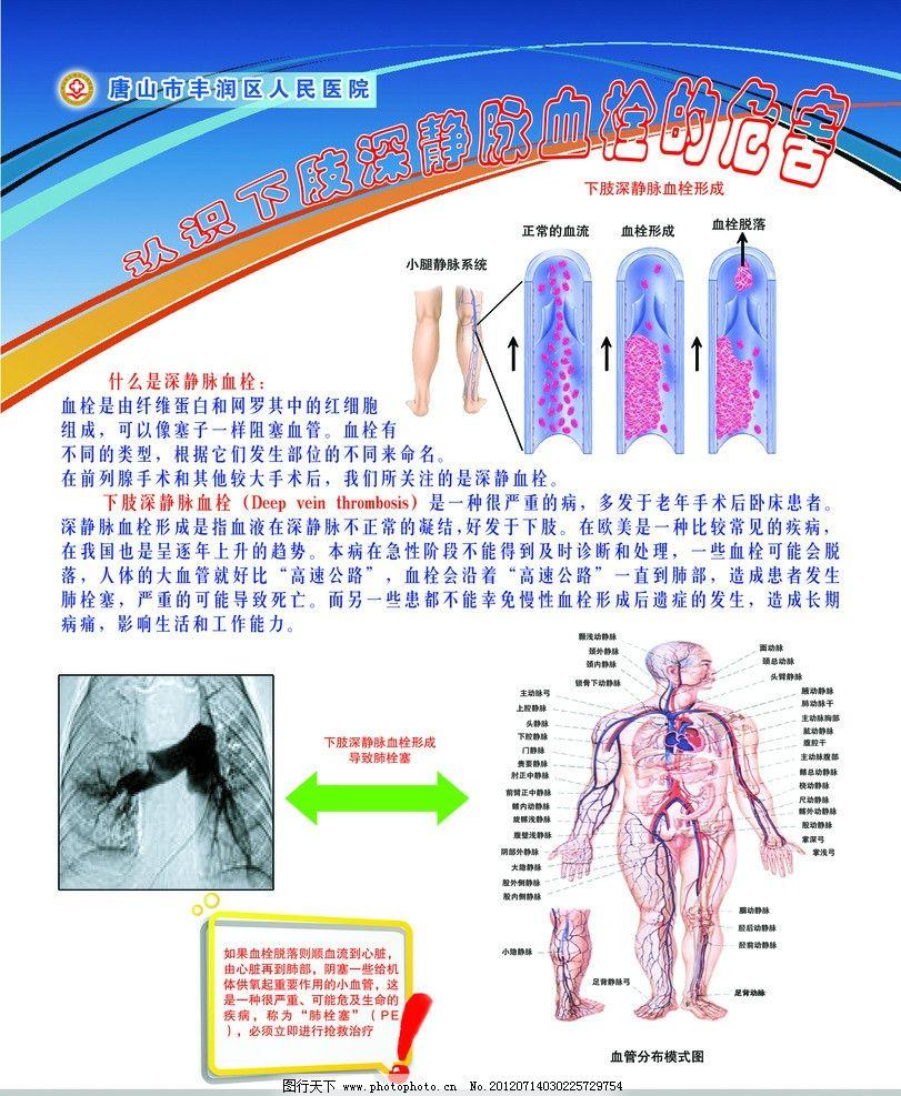 关于下肢深静脉血栓图片